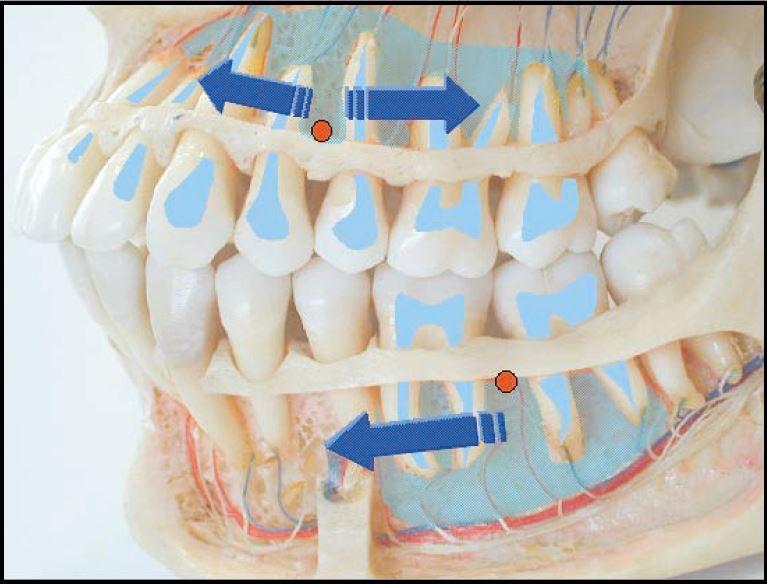 Ryc. 2. Dyfuzja anestetyku w kości gąbczastej