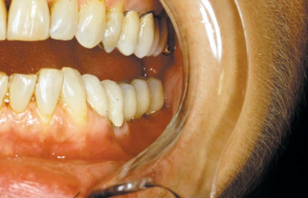 Ryc. 10. Most odbudowujący zęby 36 i 37 po zacementowaniu w ustach pacjenta (przypadek 1).
