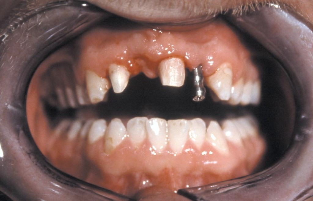 Ryc. 11. Transfer antyrotacyjny (H904) na poziomie wszczepu 22 (przypadek 2). Widoczne również oszlifowane zęby filarowe 12 i 21.