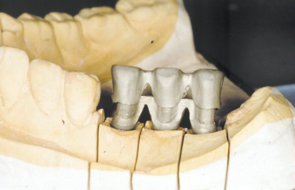 Ryc. 8. Wykonana armatura drugiego poziomu przed napaleniem porcelany (przypadek 1).