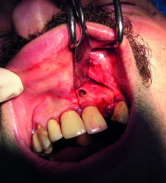 Fig.18 : Curetage de la lésion. Fig.19 : Implantation 22 (Anthogyr Axiom Px 3.4x16) et comblement de la cavité kystique de 11 après résection apicale et obturation à rétro ainsi que de la déhiscence en regard de l'apex de 22 et de l'espace libre entre la corticale vestibulaire et l'implant.