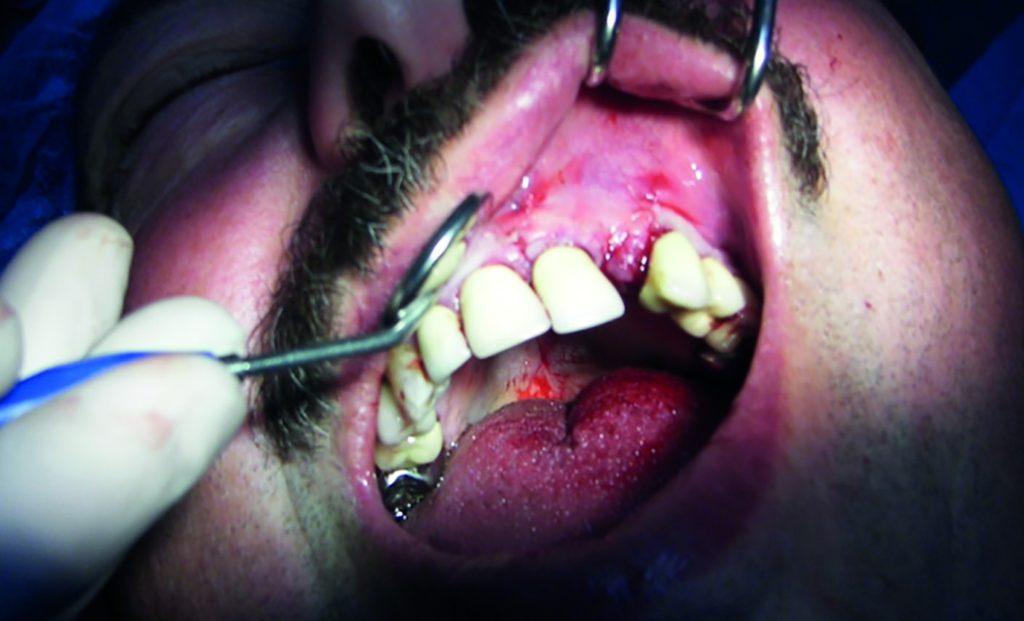 Fig.21 : Cas terminé après repositionnement du lambeau et sutures.