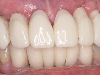 Fig. 8c Temporary fixed denture in situ.