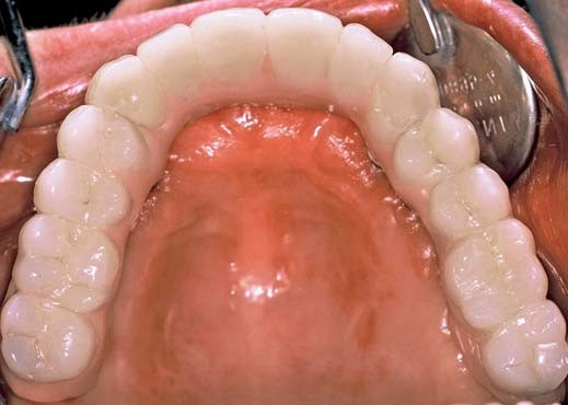 Figs. 9a-d_Final telescopic crown retained implant denture, palatal; (Fig. 9a), anterior teeth