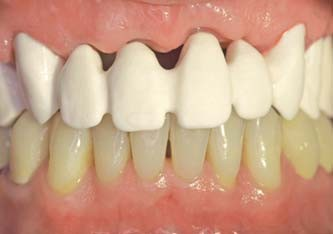 Figs. 11a & b_A case of fixed implant retained denture for the maxilla full-arch rehabilitation: trial of the mock-up (Fig. 11a)