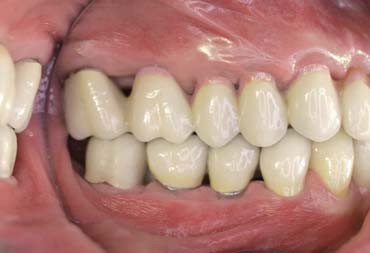 Figs 12a–c_A case of fixed-implant retained denture for the maxilla full-arch rehabilitation, right site (Fig. 12a)
