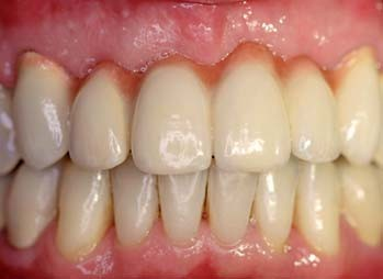 Figs 12a–c_A case of fixed-implant retained denture for the maxilla full-arch rehabilitation, anterior area (Fig. 12b),