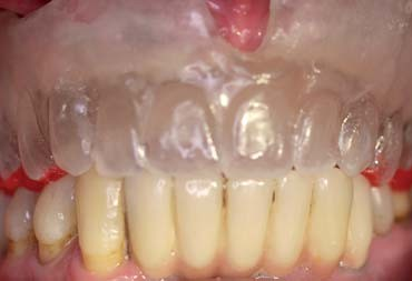 Impression and registration for Full-Arch Implant Dentures – Implant