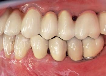 Figs 12a–c_A case of fixed-implant retained denture for the maxilla full-arch rehabilitation, left site (Fig. 12c).