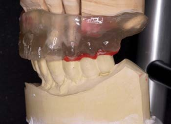 Figs. 13a–c_Impression of a case with natural dentition (teeth #11 and #12) and implants. Master cast in the articulator with a duplicate of the over-denture in place (Fig. 13b).
