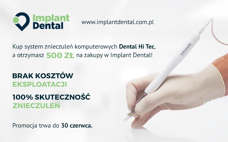 PROMOCJA: Przyznajemy 500 zł na zakupy w Implant Dental