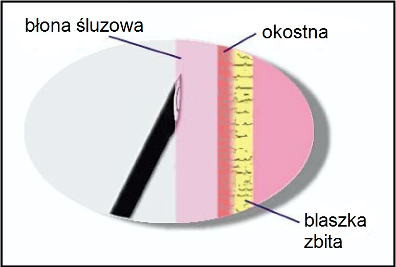 Ryc. 3. Znieczulenie błony śluzowej