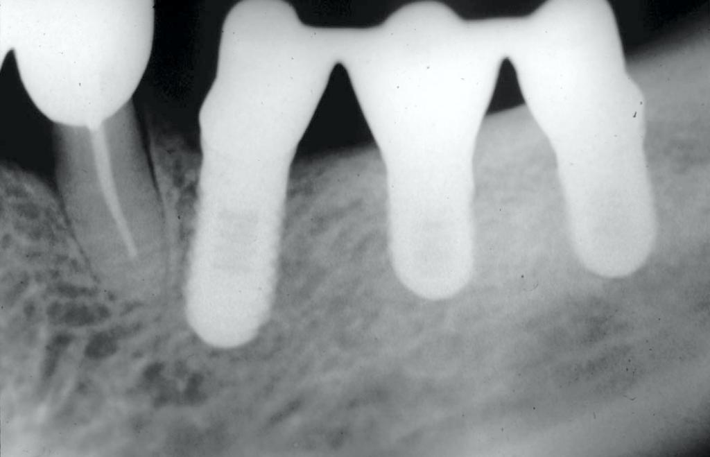Ryc. 7. Kontrola radiologiczna idealnego przylegania pierwszego poziomu do powierzchni nośnych wszczepów w ustach pacjenta (przypadek 1).