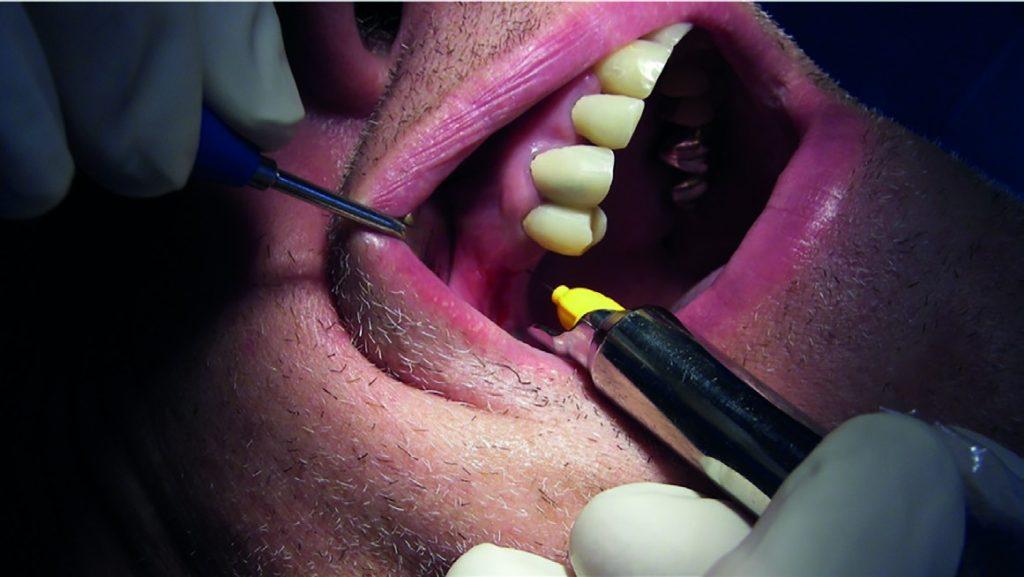 Fig.11 : Perforation de la corticale et injection après anesthésie muqueuse en regard du point d'injection choisi et tel que décrit dans le cas précédent.