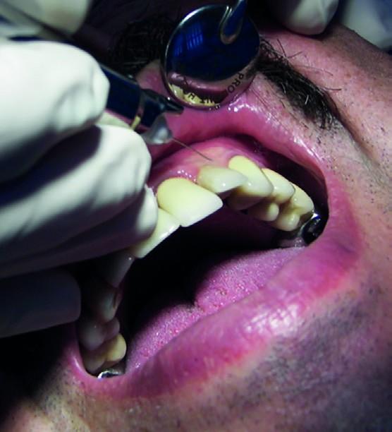 Fig.16 : Anesthésie muqueuse.