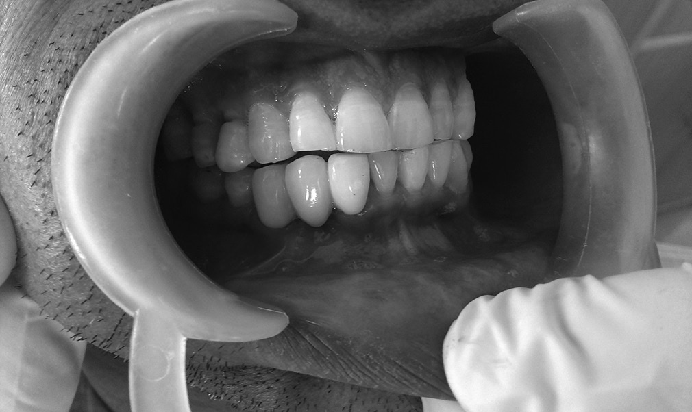 Figure 4: Clinical image 4 months after the surgical procedure with porcelain fused to metal crown being placed with the support of adjacent abutment teeth. Note the resolution of the alveolar ridge defects
