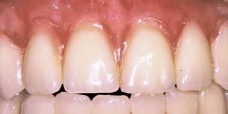 Fig. 1a_Full denture in situ.